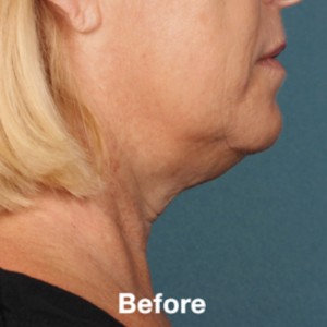Kybella Before